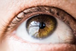 An Updated Review of Dry Eye Treatments for Patients